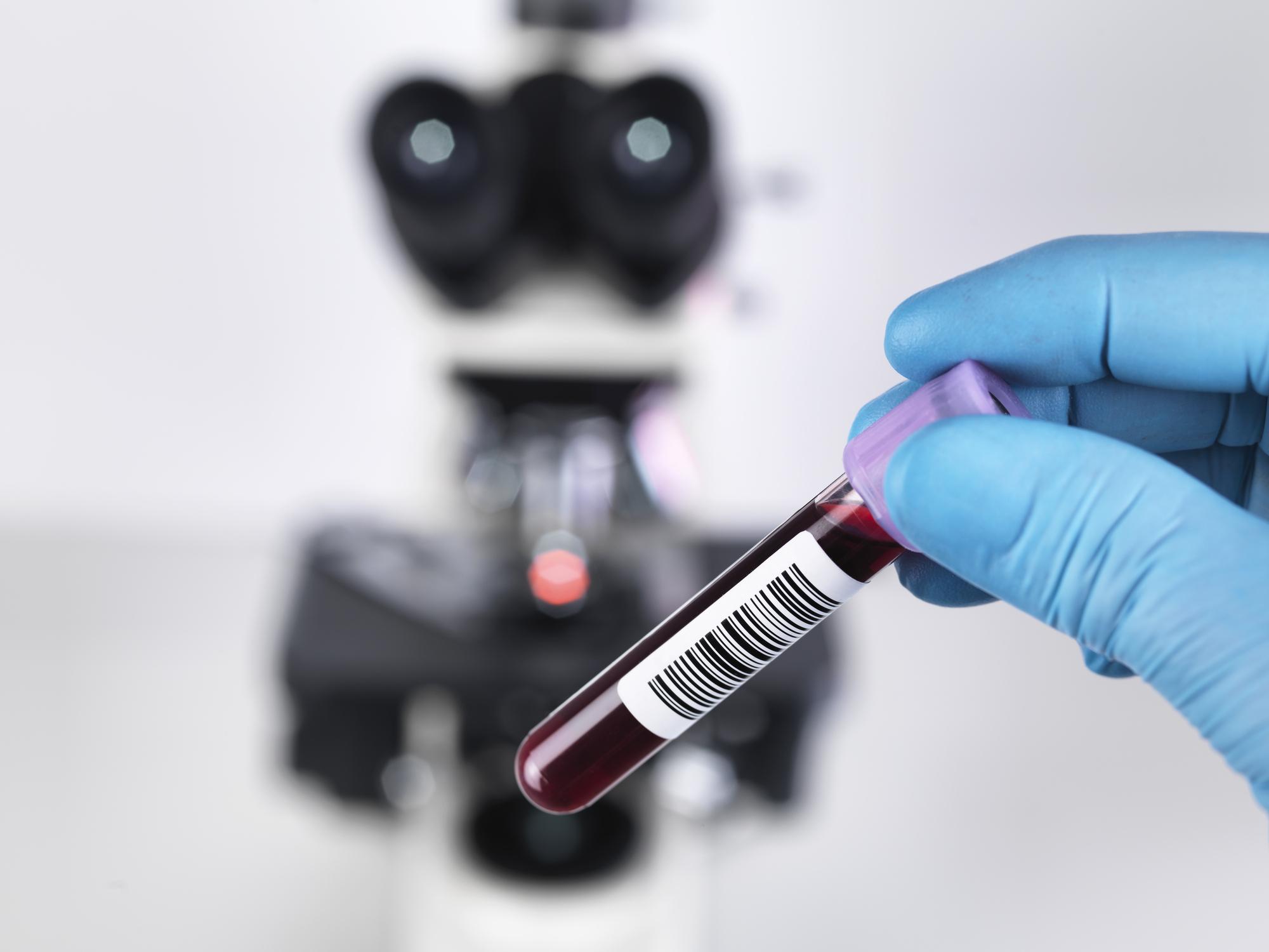 CEO,Simranjit Singh, sharing his views on how liquid biopsies