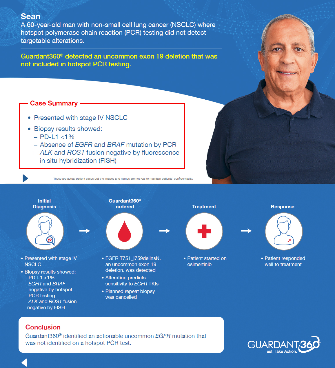The Guardant360 test can provide comprehensive genomic profiling information which helps to guide treatment decisions for advanced lung cancer patients. (Patient Case Study)