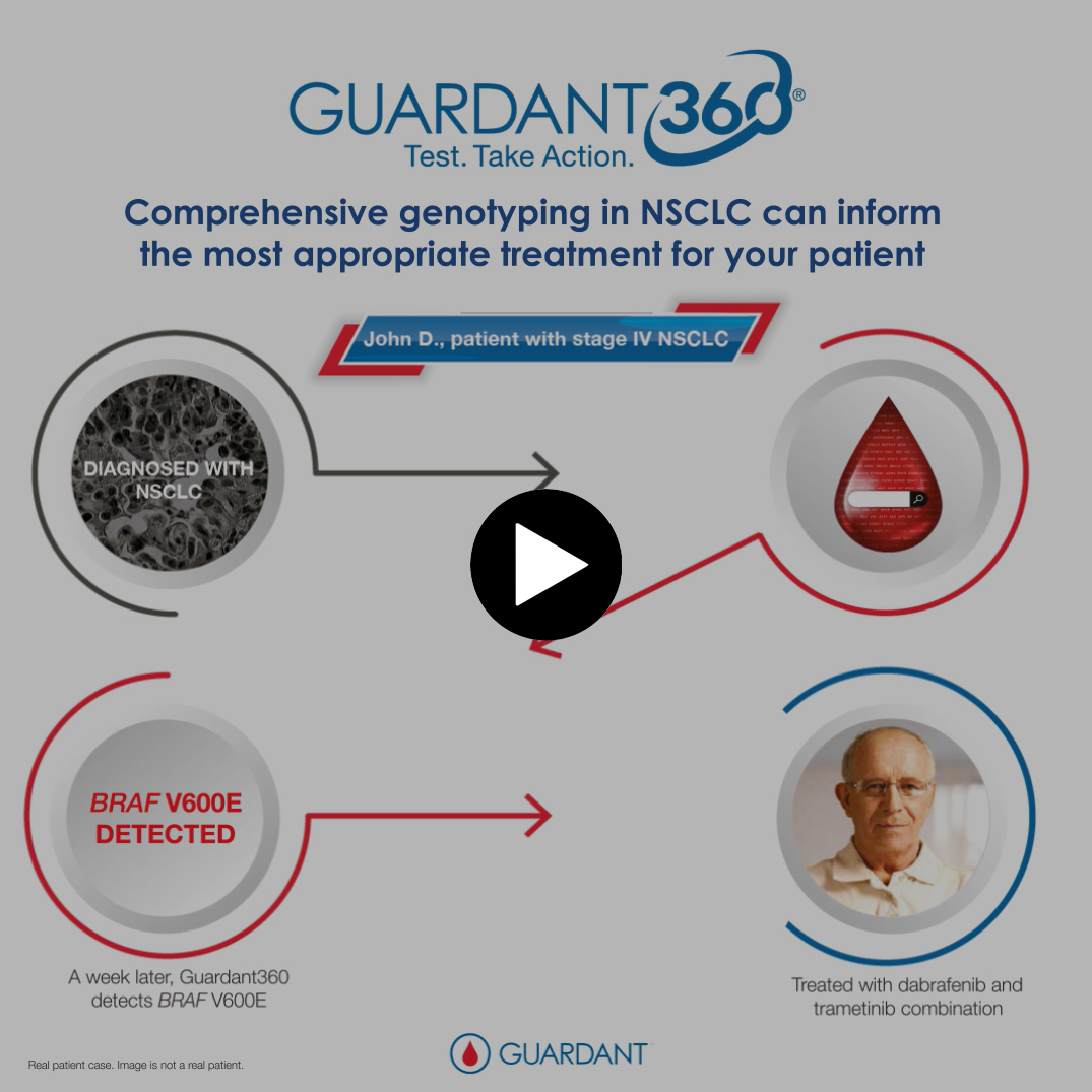 Guardant360's Comprehensive Genotyping in NSCLC