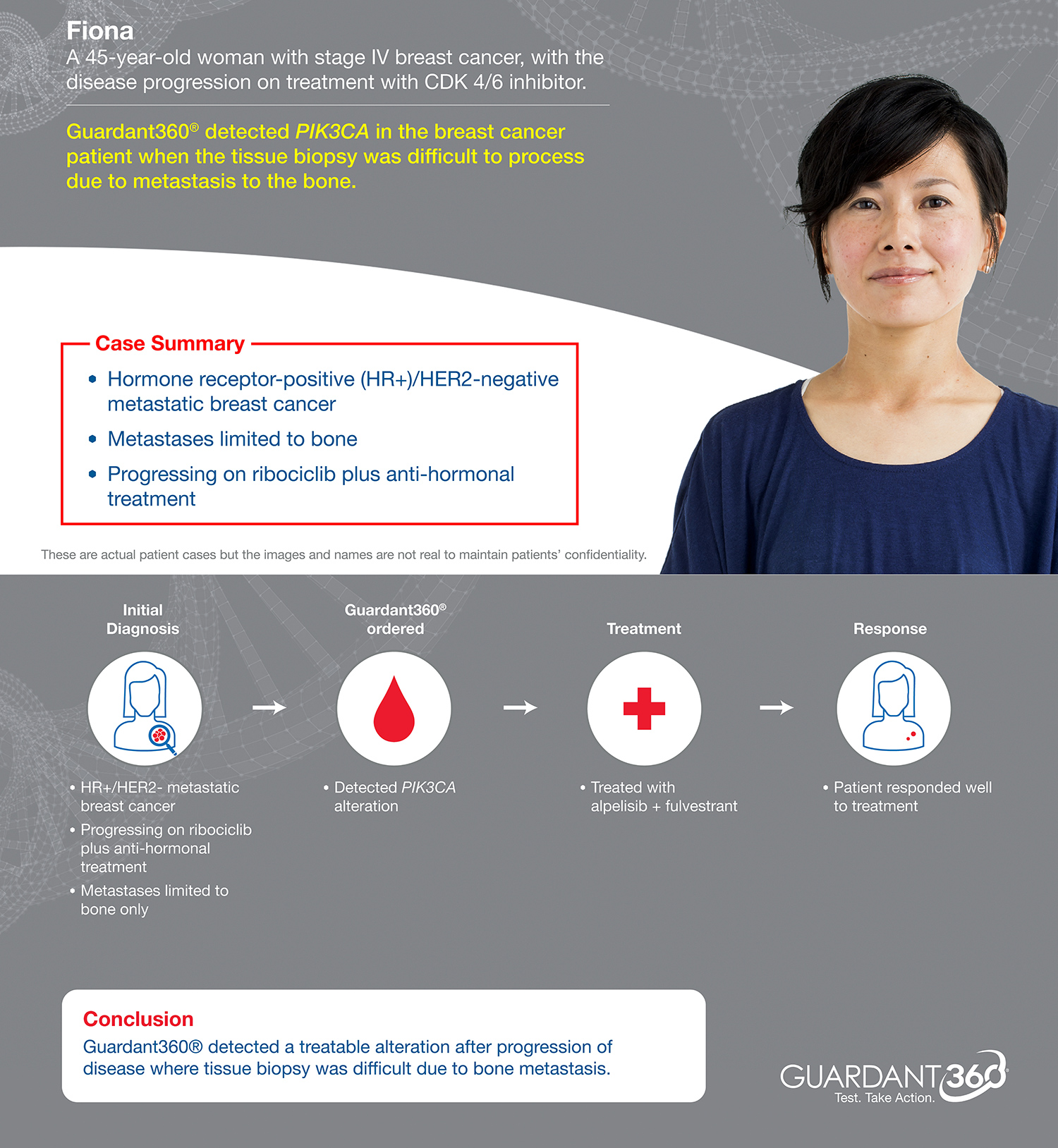 Guardant360 test is helping advanced breast cancer patients get the right treatment with a simple blood draw (Patient Case Study)